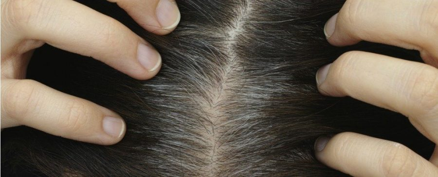 How Stress Can Produce Grey Hairs