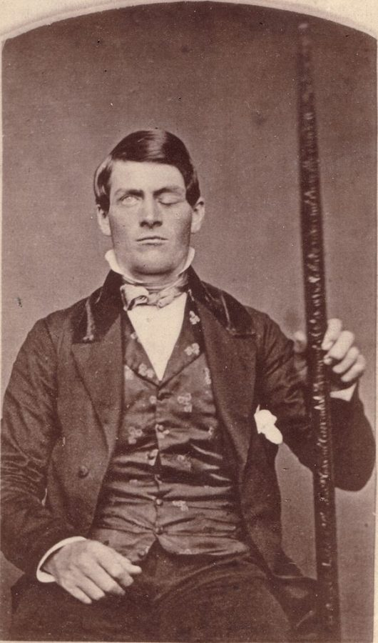 Phineas Gage: The Head of Steel